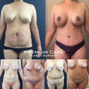 Breast Lift in Colombia - Premium Care Plastic Surgery