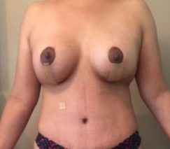 Before and After Mommy Make Over in Colombia at Premium Care Plastic Surgery