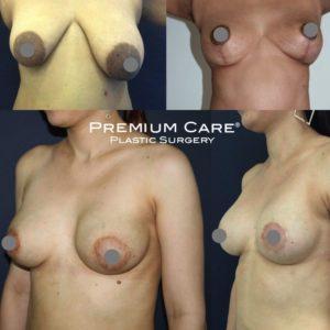 Nipple Surgery in Colombia - Premium Care Plastic Surgery