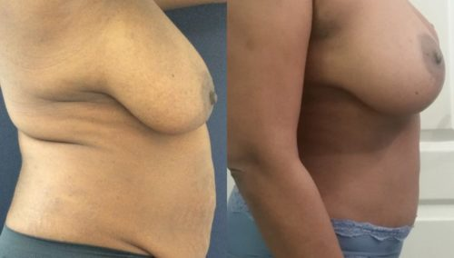 after weight loss colombia 110-3-min