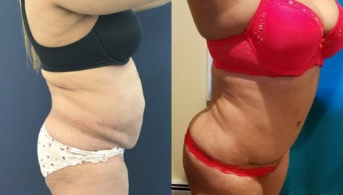 after weight loss colombia 134-3-min