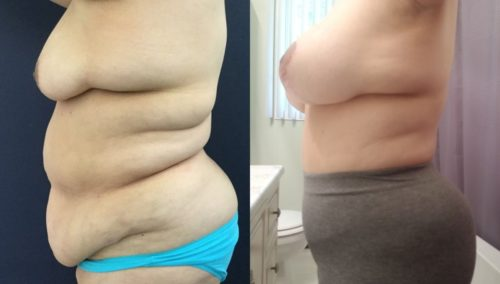 after weight loss colombia 174-2-min