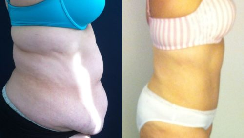 after weight loss colombia 22-2-min