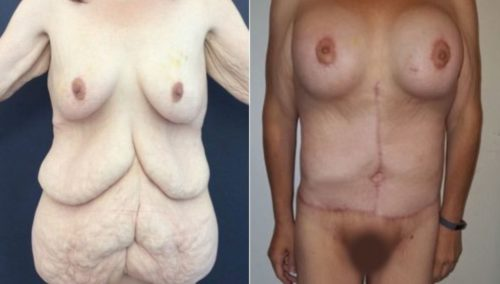 after weight loss colombia 253-1-min