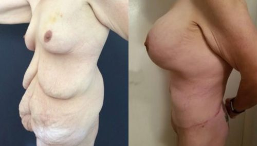 after weight loss colombia 253-2-min