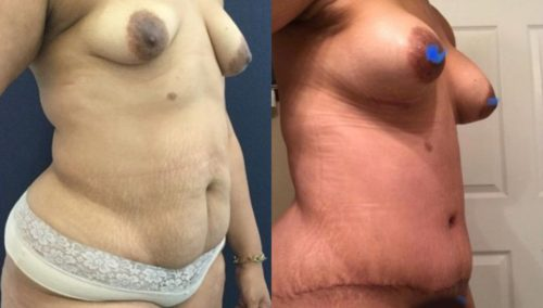 after weight loss colombia 265-4-min