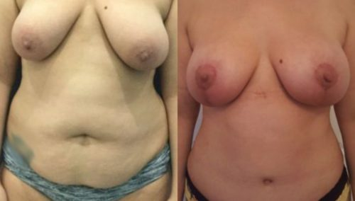 after weight loss colombia 288-1-min