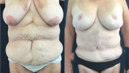 after weight loss colombia 322-1-min