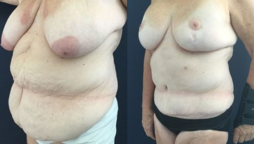 after weight loss colombia 322-2-min