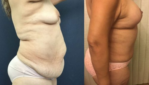 after weight loss colombia 85-3-min