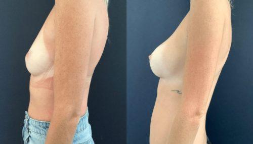 breast augmentation colombia 108-3-min