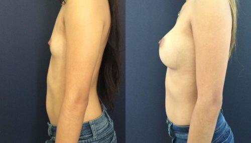 breast augmentation colombia 202-3-min