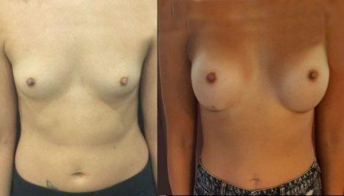 breast augmentation colombia 214-1-min