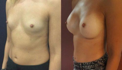 breast augmentation colombia 214-2-min