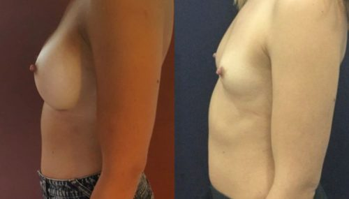 breast augmentation colombia 214-3-min
