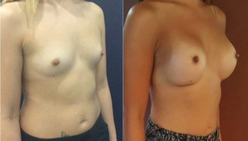 breast augmentation colombia 214-4-min