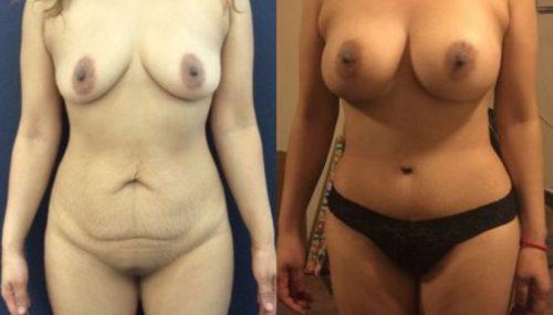 breast augmentation colombia 219-1-min