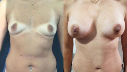breast augmentation colombia 227-1-min