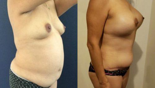 breast augmentation colombia 261-4-min