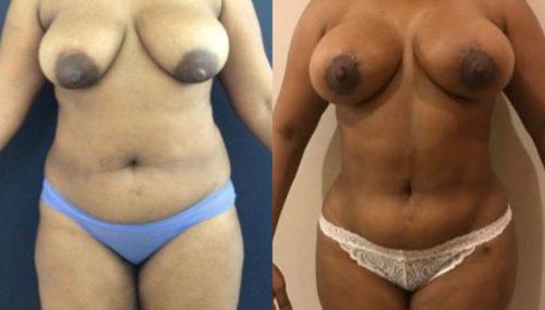 breast augmentation colombia 279-1-min