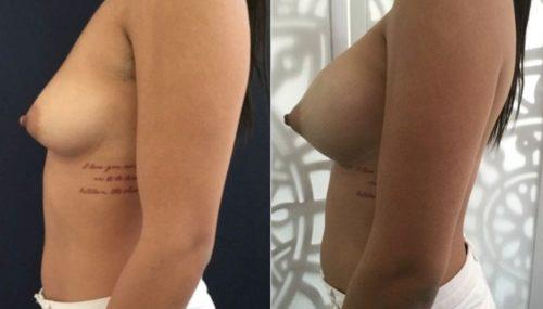 breast augmentation colombia 292-3-min