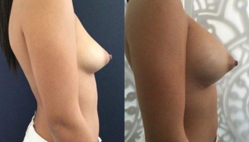 breast augmentation colombia 292-5-min