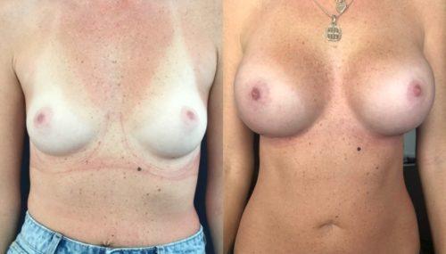breast augmentation colombia 344-1-min