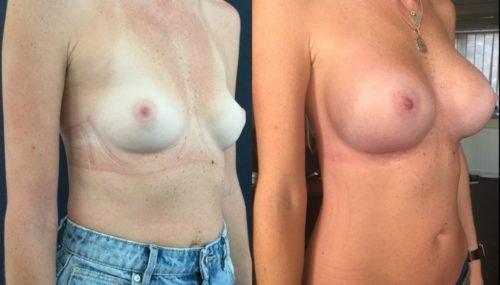 breast augmentation colombia 344-4-min
