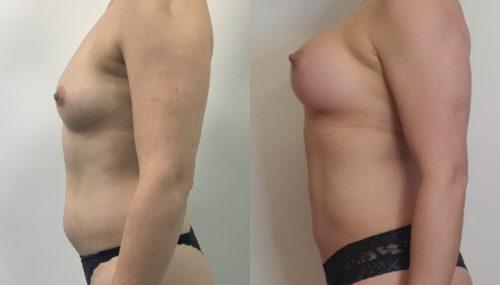 breast augmentation colombia 366-3-min