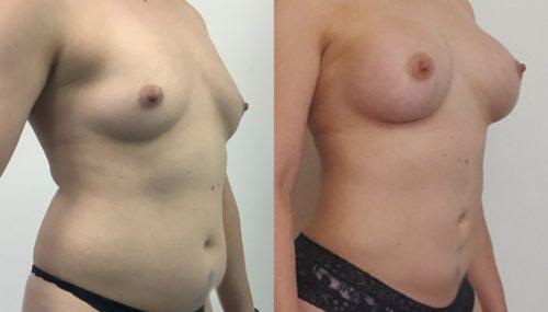 breast augmentation colombia 366-4-min