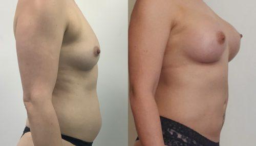 breast augmentation colombia 366-5-min