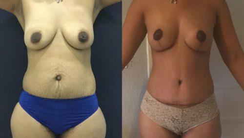 breast lift colombia 201-1-min