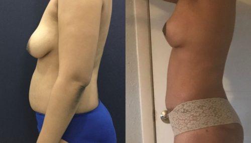 breast lift colombia 201-2-min