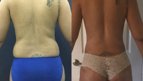breast lift colombia 201-4-min
