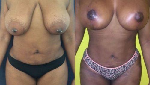 breast lift colombia 206-1-min