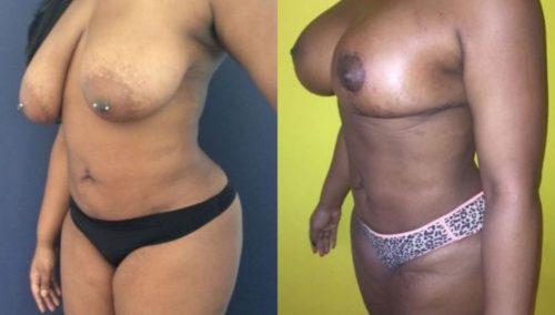 breast lift colombia 206-2-min