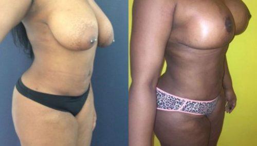 breast lift colombia 206-3-min