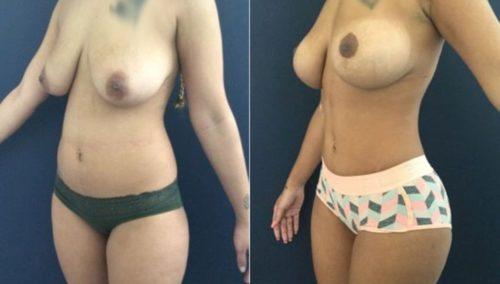 breast lift colombia 207-2-min