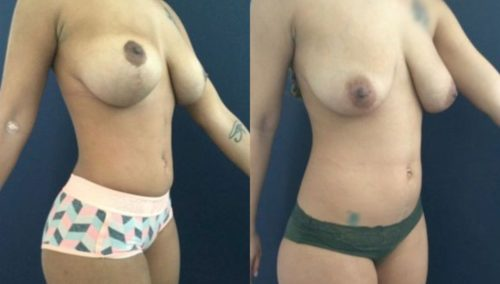 breast lift colombia 207-4-min