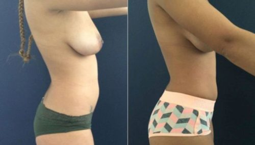breast lift colombia 207-5-min