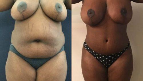 breast lift colombia 209-1-min