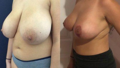 breast lift colombia 224-2-min