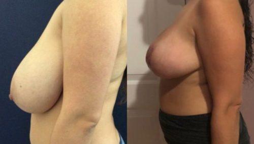 breast lift colombia 224-3-min
