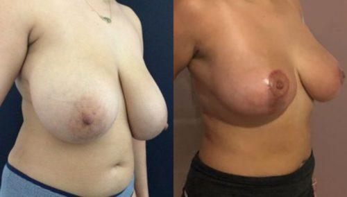 breast lift colombia 224-4-min