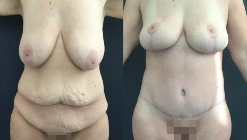 breast lift colombia 226-1-min