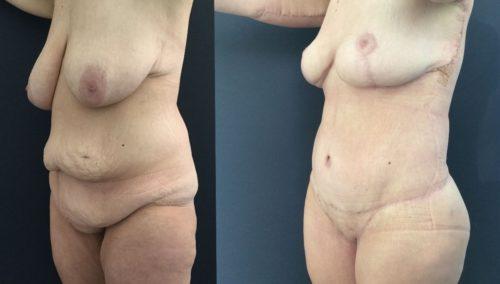 breast lift colombia 226-2-min