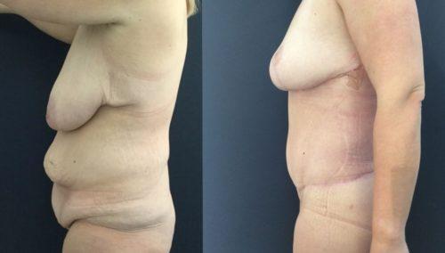 breast lift colombia 226-3-min
