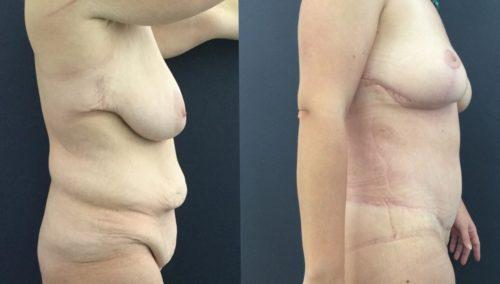 breast lift colombia 226-5-min