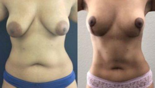 breast lift colombia 244-1-min
