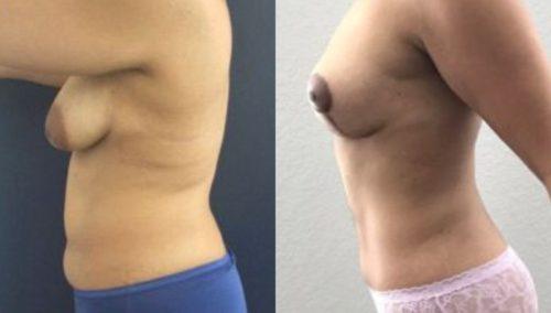 breast lift colombia 244-2-min